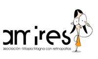 AMIRES- ASOCIACIÓN DE MIOPÍA MAGNA CON RETINOPATÍAS